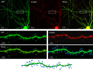 Stephenson_710andImaris_neuron