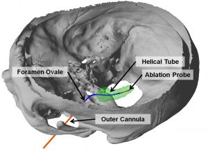 Transforamenal ablation needle concept