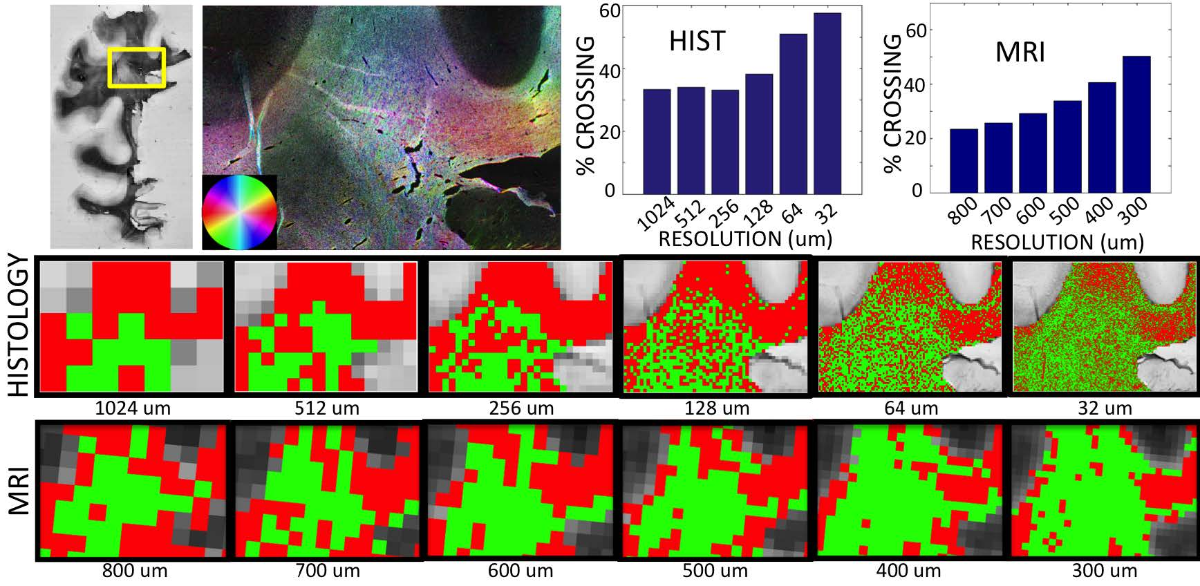 """Figure 1 shows the results of ST analysis in a region with in-plane fiber crossings. We find that, in both MRI and histology, the percent of voxels with crossing fibers actually increases as we increase the resolution. The middle and bottom rows highlight """"single"""" fiber regions in red and """"crossing"""" fibers as green, and qualitatively show that many regions with a """"single"""" fiber population at a coarse resolution exhibit crossing patterns when processed at a finer resolution."""