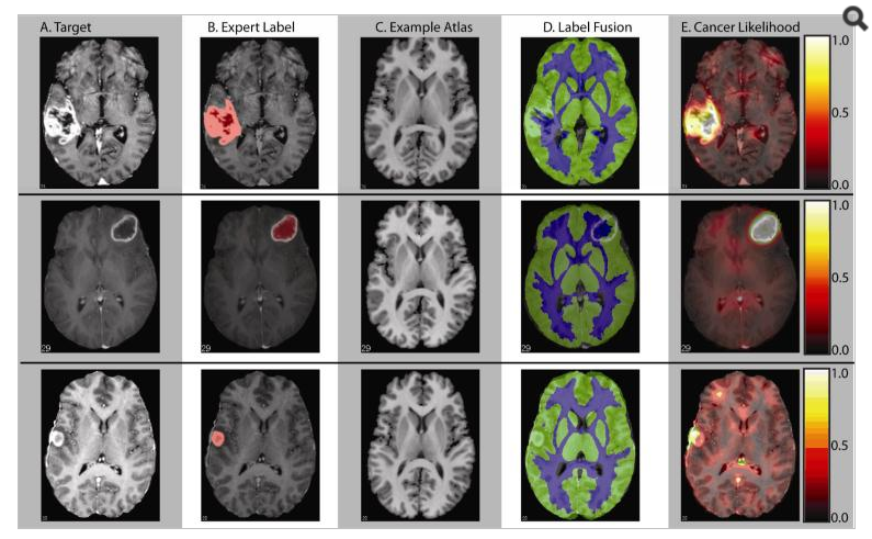 Example qualitative results. Three representative slices from three different brains are presented for comparison. For each example, the target, truth labels, an example atlas, the label fusion estimate and the cancer likelihood estimate are presented. Note the high quality likelihood estimate in the first two examples. On the third example, the cancer is detected, but it is not as well localized as in the first two examples.