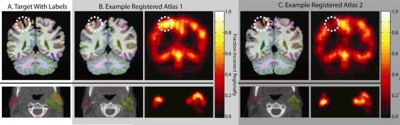 Registered atlases exhibit spatially varying behavior. Representative slices from an expertly labeled MR brain image and CT head and neck image are shown in (A). Example registered atlases with their local performance can be seen in (B) and (C).