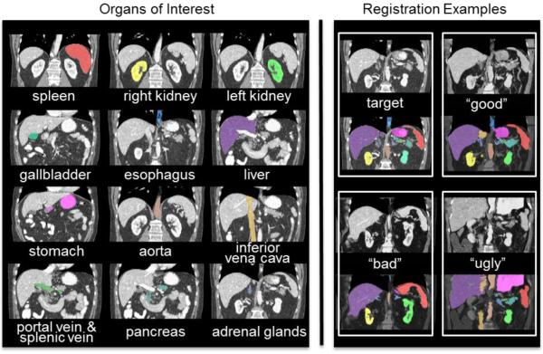 Twelve organs of interest (left) and registration examples of variable qualities for one target image (right).