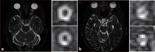 An example of a healthy nerve (A) and an atrophied nerve (B) from the multi-atlas segmentation atlas subjects. In the coronal view, ON atrophy is apparent. Quantification of these structural differences is the target of the presented algorithm.