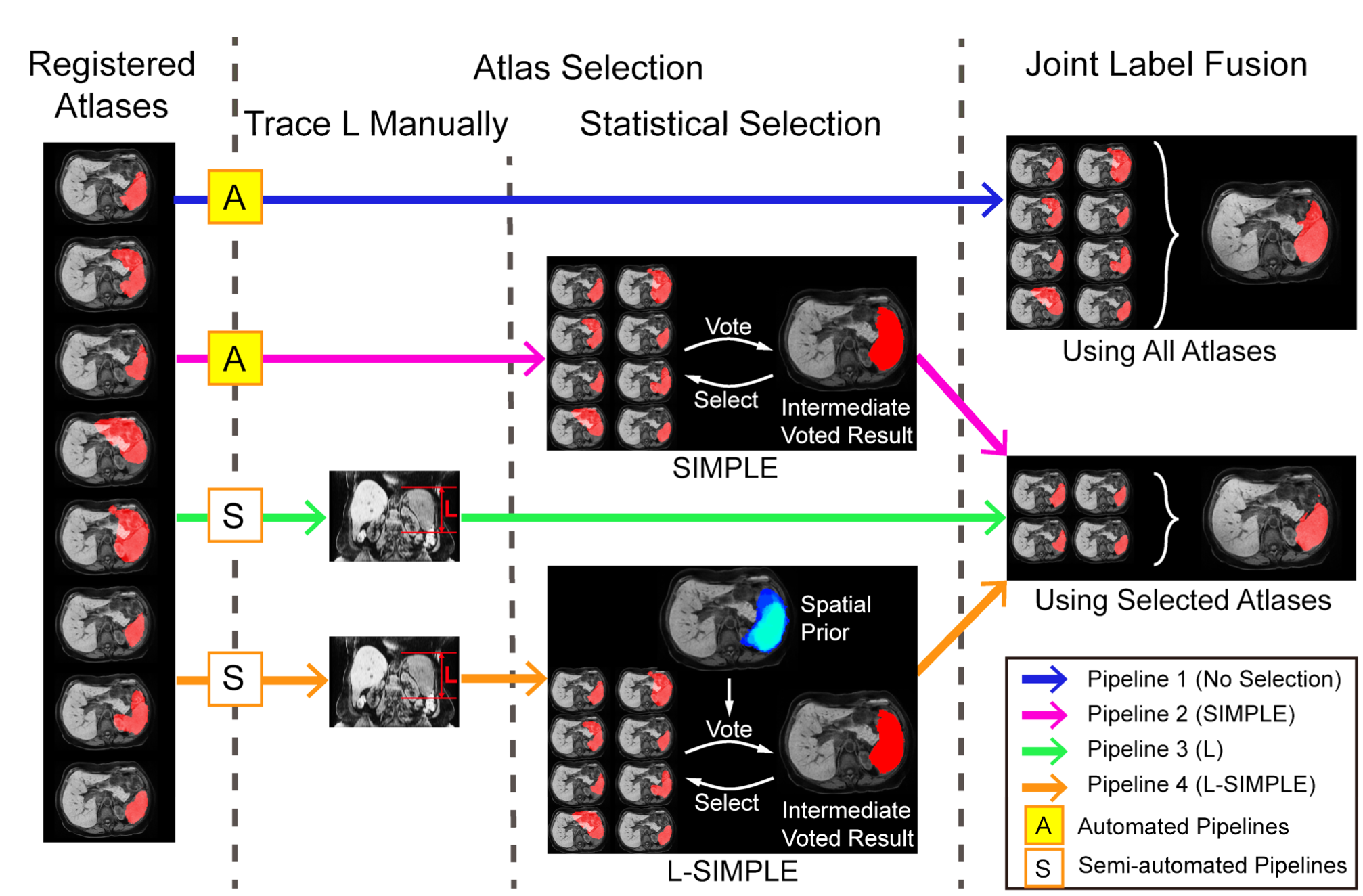 Flow chart of the four different MAS pipelines. Pipeline 1 conducts the label fusion without atlas selection. Pipeline 2 conducts the atlas selection using the SIMPLE statistical selection method. Pipeline 3 selects atlases which have the closer L to the target image. Pipeline 4 is the L-SIMPLE method, which combines the advantages in Pipelines 2 and 3. A spatial prior is derived using L to guide the statistical atlas selection procedure.