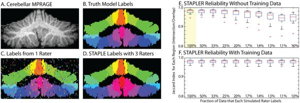 Simulations with traditional random raters. Coronal sections of the three-dimensional volume show the high resolution MRI image (A), manually drawn truth model (B), an example delineation from one random traditional rater (C), and the results of a STAPLE recombination of three label sets (D). STAPLER enables fusion of label sets when raters provide only partial datasets, but performance suffers with decreasing overlap (E). With training data (F), STAPLER improved the performance even with each rater labeling only a small portion of the dataset. Box plots in E and F show mean, quartiles, range up to 1.5σ, and outliers. The highlighted plot in E indicates the simulation for which STAPLER was equivalent to STAPLE--i.e., all raters provide a complete set of labels.
