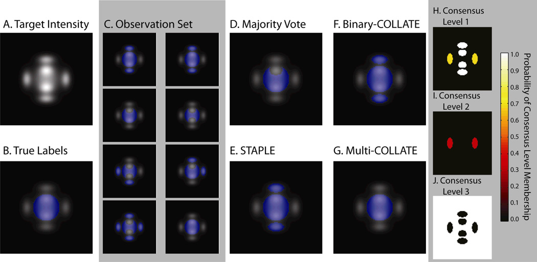 Figure 2 Results from the controlled rater observation simulation. The target intensity image and the corresponding true labels can be seen (A) and (B), respectively. The set of input observations used in this experiment can be seen in (C). The results of the four algorithms, Majority Vote, STAPLE, Binary-COLLATE and Multi-COLLATE can be seen in (D)–(G). Note that the 3 consensus-level implementation of Multi-COLLATE is the only algorithm that gets the correct answer. The 3 energy in each of the consensus levels can be seen in (H)–(J). Note that by distributing the non-consensus voxels into two separate levels, (H) and (I), the estimation process converges to the correct answer.