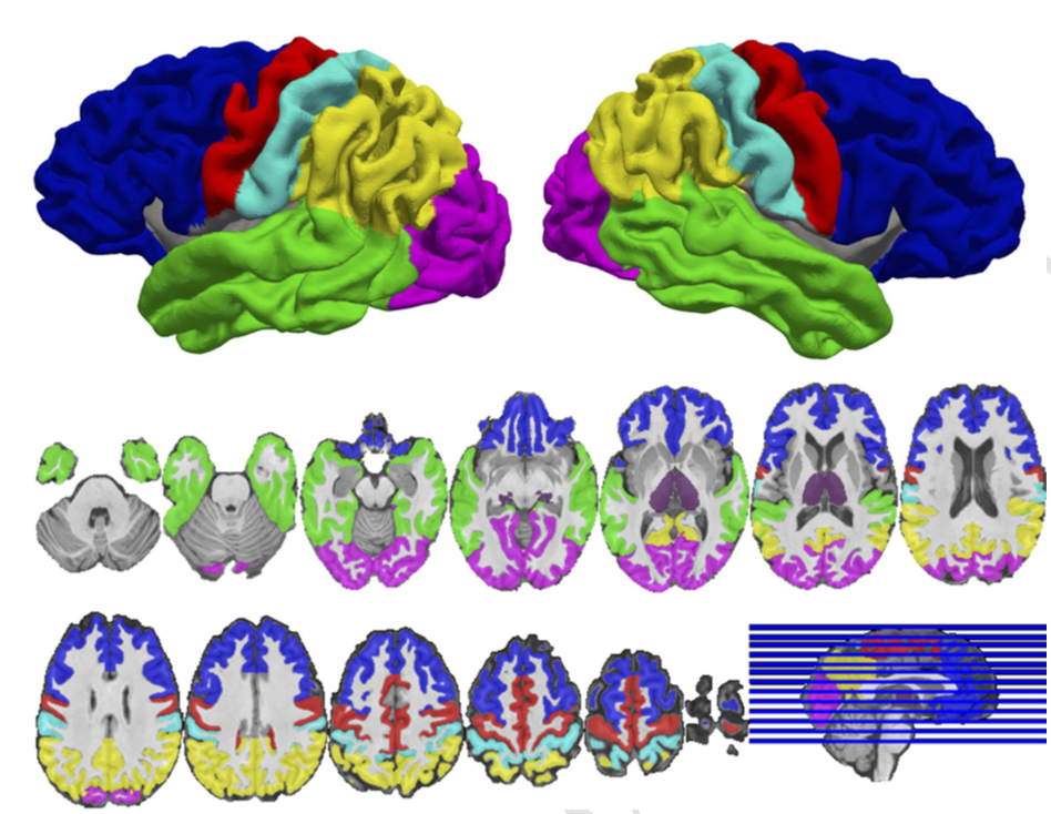 Cortical regions‐of‐interest (ROIs) and thalamus for one subject. Segmentations derived from multi atlas were used to create subject‐specific ROIs for the thalamus (purple) and 6 cortical subdivisions: prefrontal cortex (blue), motor cortex/supplementary motor area (red), somatosensory cortex (cyan), temporal cortex (green), posterior parietal cortex (yellow), and occipital cortex (violet). The thalamus and cortical ROIs were used as seed and targets, respectively, to quantify thalamocortical structural connectivity using probabilistic tractography. The lateral surface renderings in the top panel were generated by projecting the cortical ROIs onto the central surface of the cortical mantle.