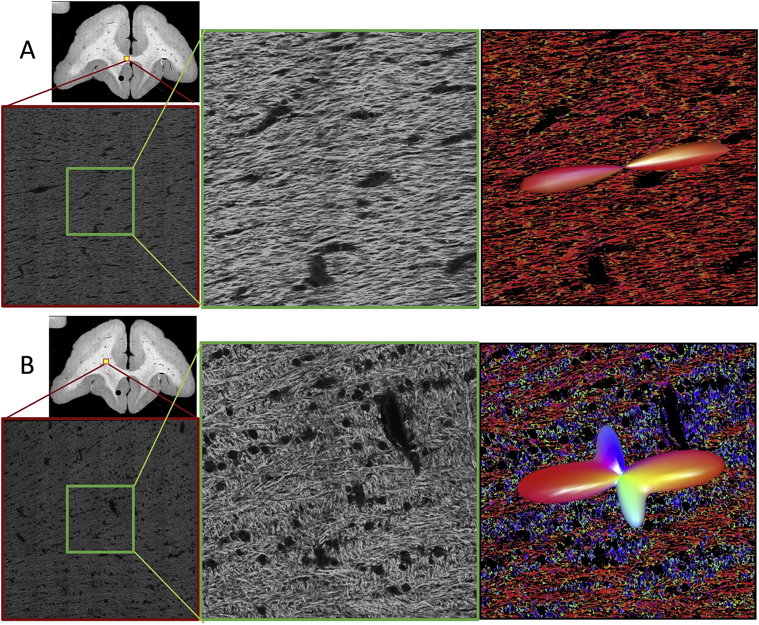 Qualitative confocal images. Representative confocal data (of a single slice) are shown for single (A) and crossing (B) fiber regions. Overview images highlight location of full 3D z-stacks (shown as a single, middle slice). A zoomed regions of interest in the middle of the z-stack (equivalent in size to an MRI voxel) are shown in the middle column. Results from structure tensor analysis are shown as color-coded images (with colors scheme as described in Fig. 1), with the histologically-defined FOD overlaid as 3D glyphs (right).