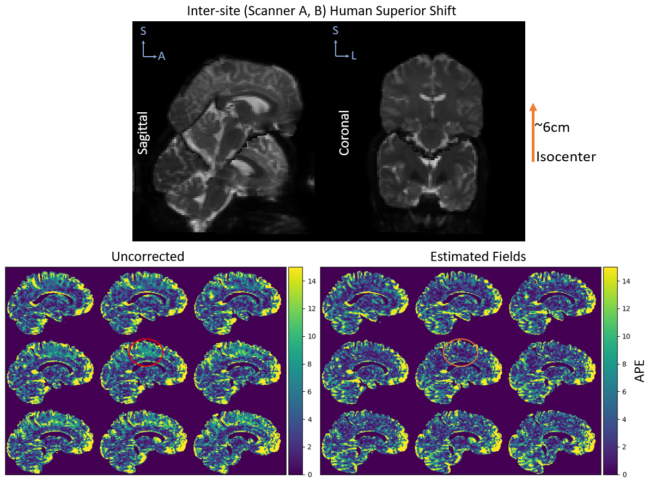 Figure 6.  The absolute percent error (APE) in MD is shown for the human subject with one session acquired at isocenter on scanner A and another acquired 6cm superior from isocenter on scanner B. The top plot shows the sagittal and coronal view of the b0 from each session to demonstrate the shift within the scanner. The bottom plots show the APE for nine saggital slices before correction, after correction using the estimated fields, and after correction using the manufacturer specifications. The error before correction is most prominent in the superior regions of the phantom as those were the furthest from isocenter during the second acquisition.