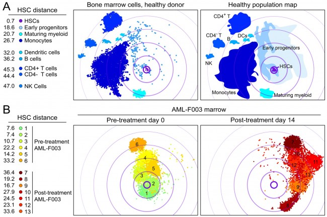 2016 Ferrell et al. - PLOS ONE - High-Dimensional Analysis of Acute Myeloid Leukemia Reveals Phenotypic Changes in Persistent Cells during Induction Therapy